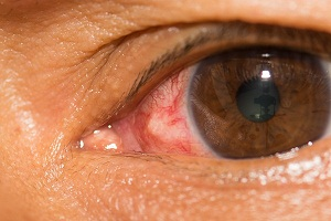Symptoms Leading to Complications in Conjunctivitis Patients