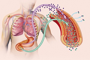What Are the Causes and Risk Factors for Chronic Kidney Disease?