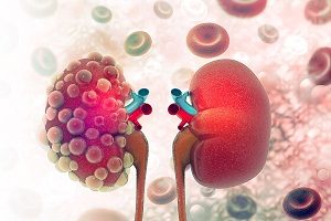 Signs and Symptoms of Chronic Kidney Disease (CKD)
