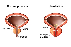 What causes Prostatitis?