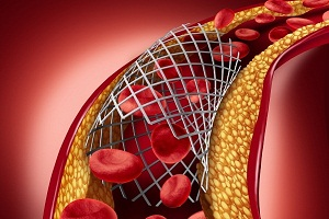 How Is Coronary Heart Disease Treated?