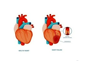 How is Coronary Heart Disease Diagnosed?