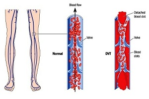 Deep Vein Thrombosis Leg Pain (Blood Clot in Leg)
