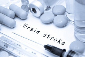 What is the Treatment of a Stroke?