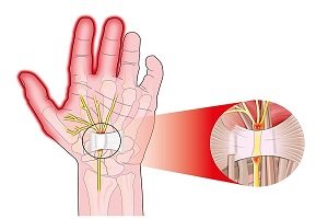 Carpal Tunnel Syndrome (CTS): General Overview