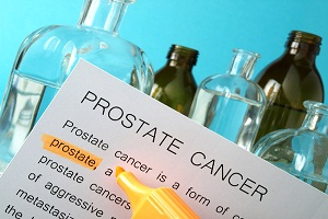 Testing and Diagnosis of Prostate Cancer