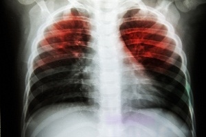 What Does Lung Cancer Look Like on an X-ray?