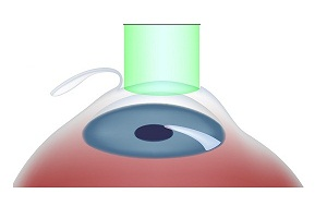 All About Lasik Eye Surgery