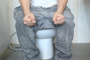 Do Hemorrhoids Go Away On Their Own?