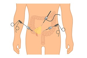 Appendicitis Tests: How To Know That You Have Appendicitis?