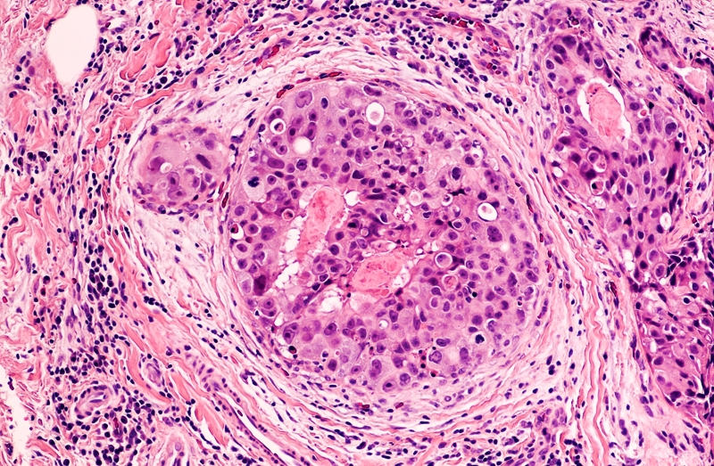 Breast cancer diagnosis through biopsy procedure