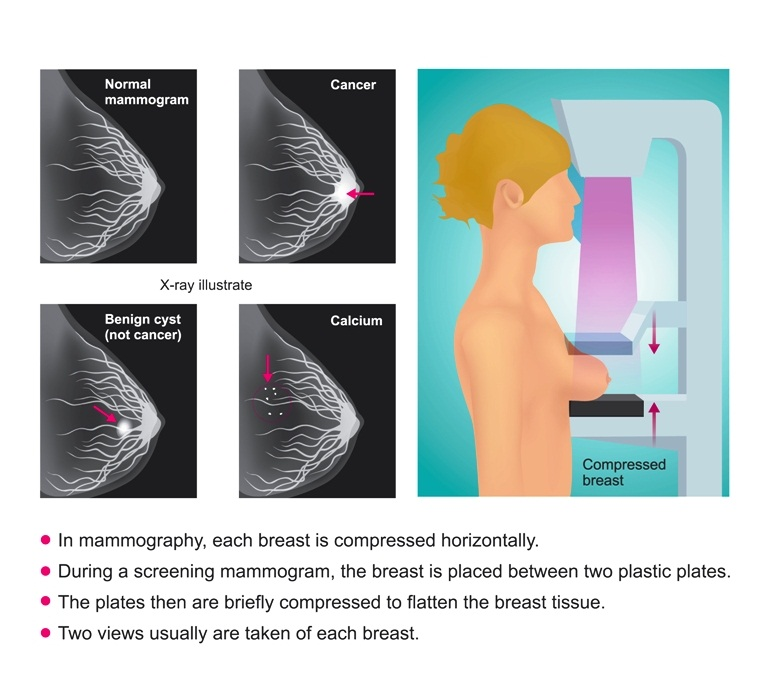 Screening mammography image