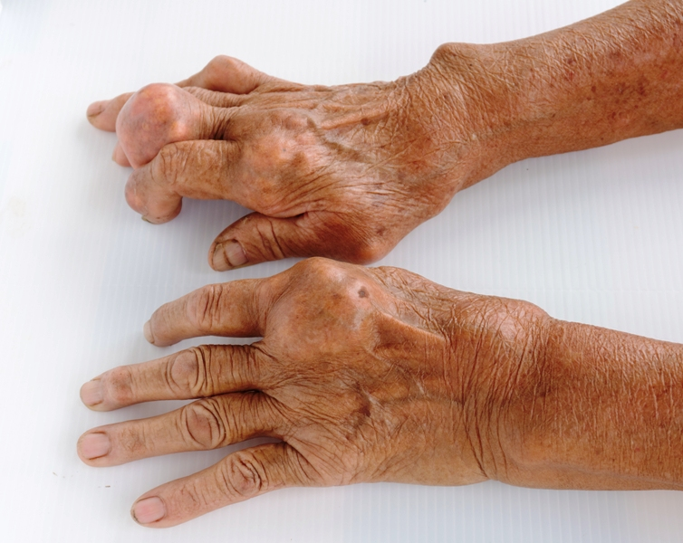Fingers of a patient with gout