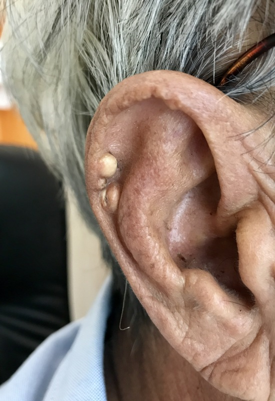 Tophi at the helix of ear (patient had poor control hyperuricemia)
