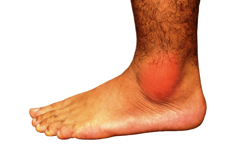 Image of painful gout inflammation on ankle joint