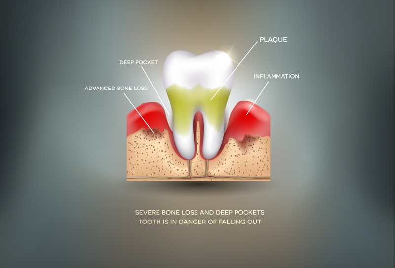 Periodontitis - Inflammation of the gums detailed illustration