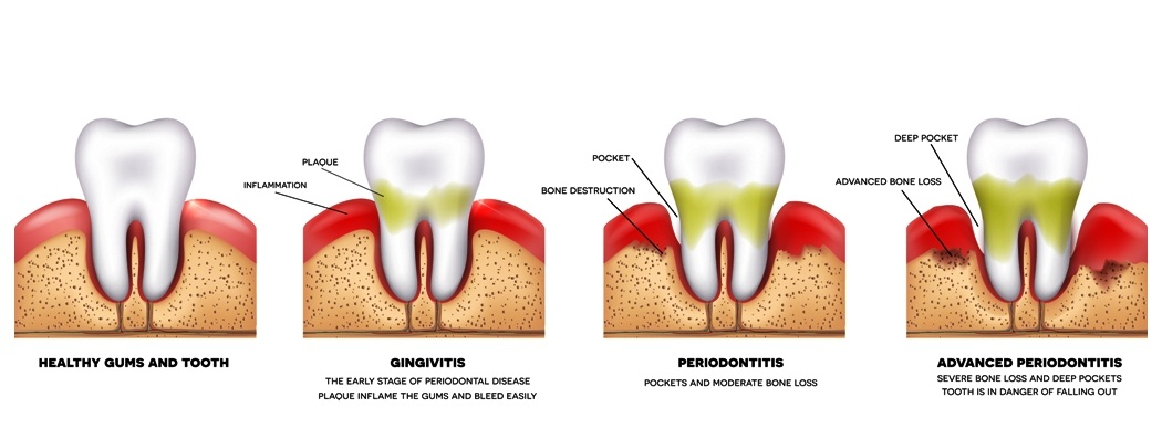 Periodontitis and inflammation of the gums