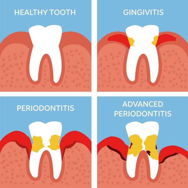 Different stages of periodental disease