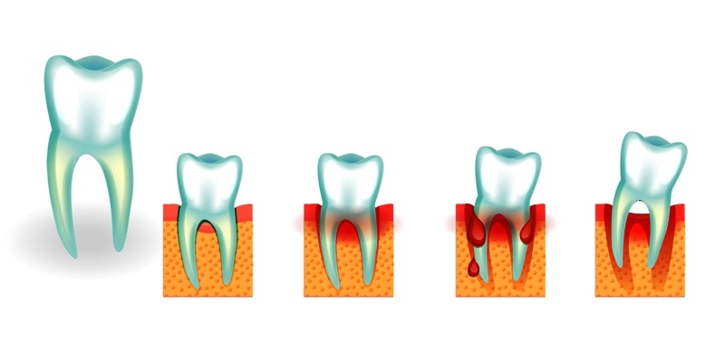 Illustration of tooth loss