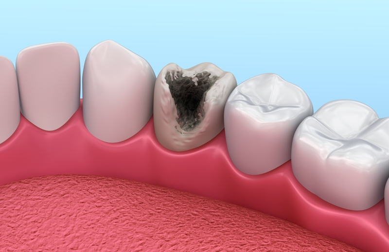Teeth with caries