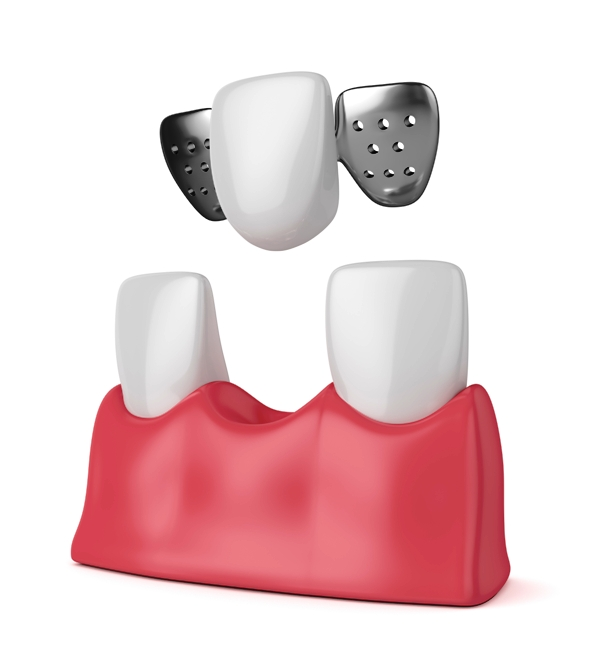 3D illustration of teeth with dental maryland bridge in gums