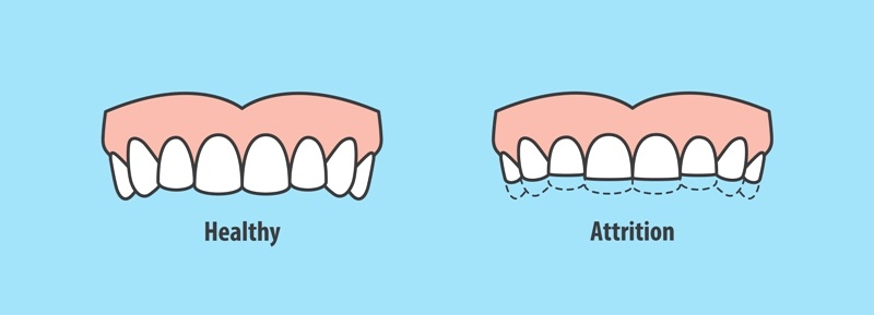 Effects of tooth grinding (bruxism)