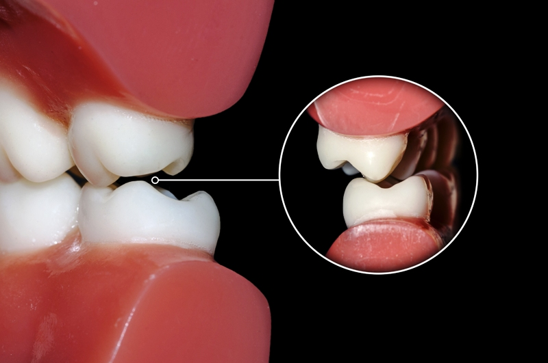 Dental occlusion molars teeth