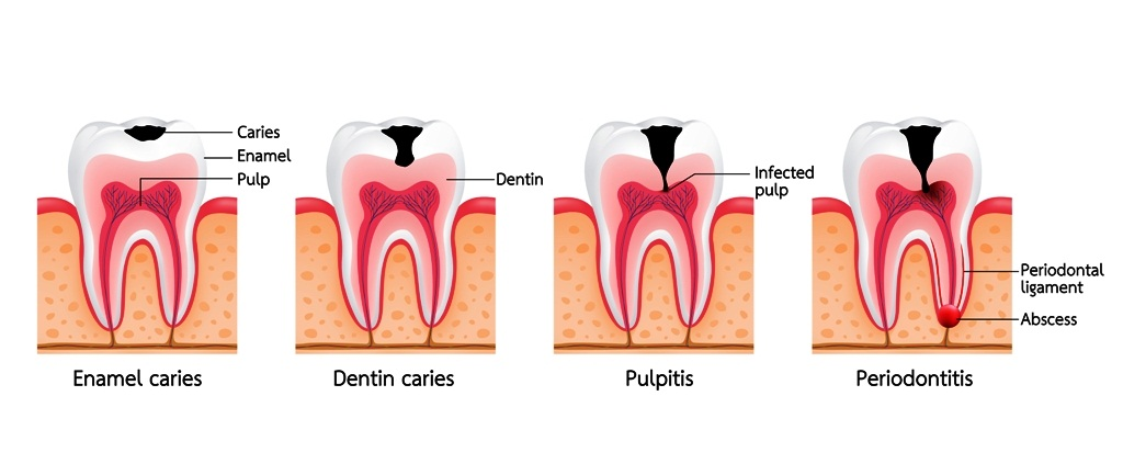 Stages of dental caries development: How cavities develop?