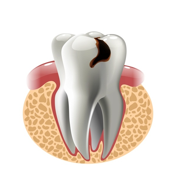 What is a dental cavity (dental caries)?
