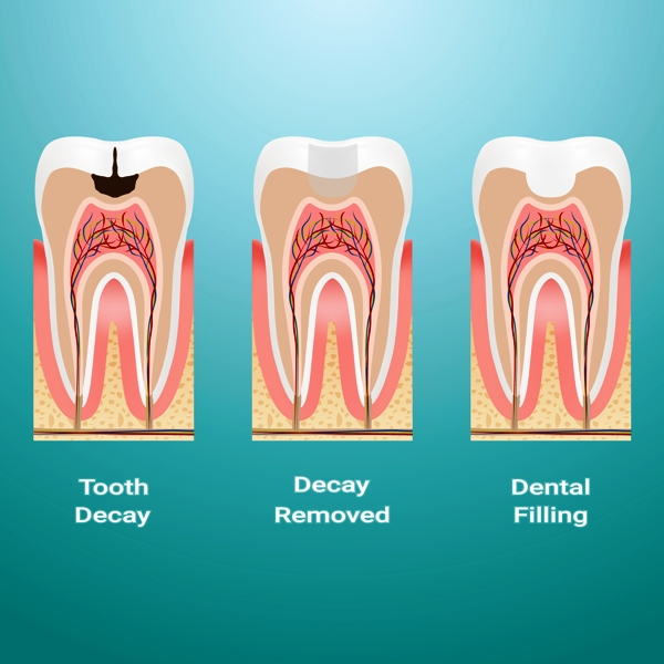 What is dental filling?