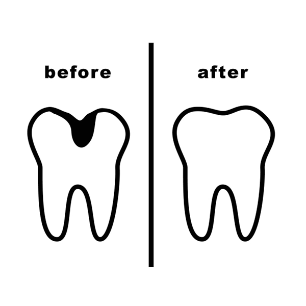 Caries before and after dental treatment