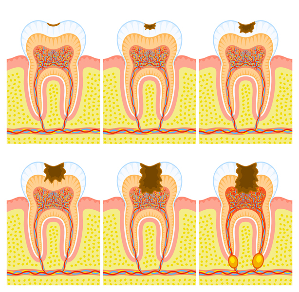 Internal structure of tooth: caries and decay