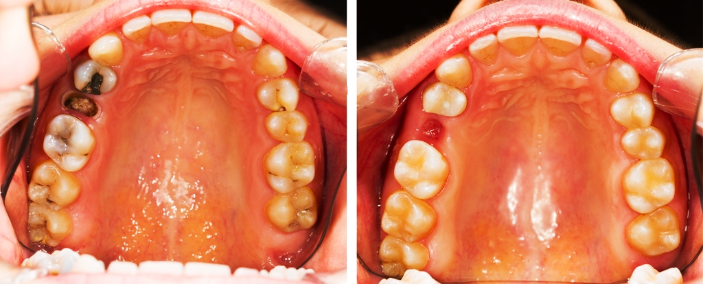 Teeth before an after dental treatment