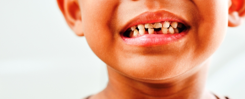 Rooten teeth of a child
