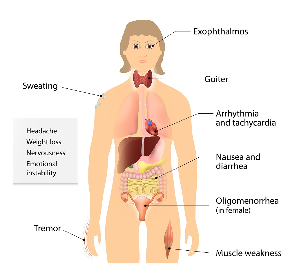 Symptoms of Graves' disease
