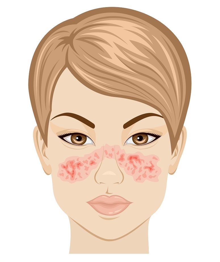 Illustration symptoms of systemic lupus on the face