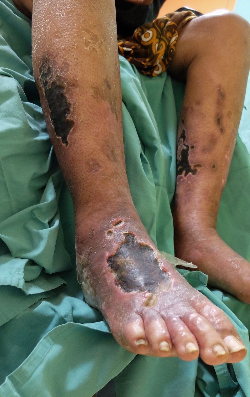 Diabetic foot ulcer with chronic limb ischemia