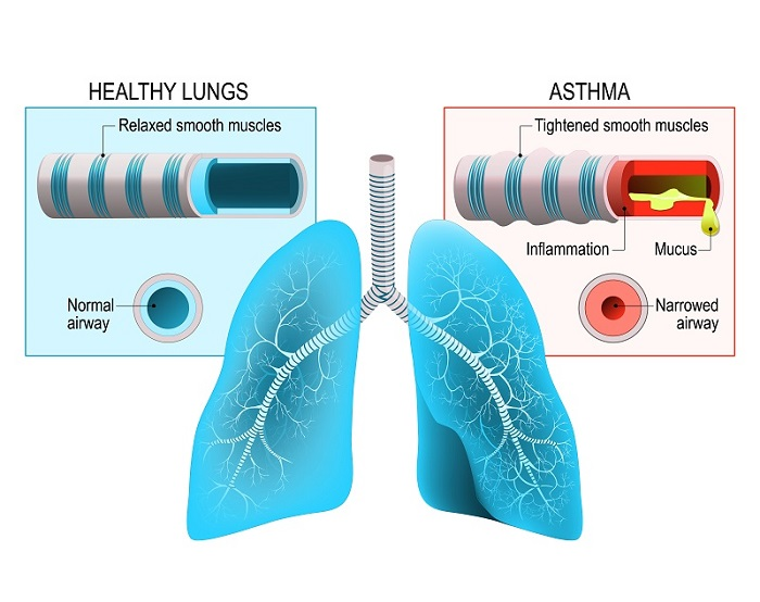 Healthy lungs VS lungs in an asthma patient