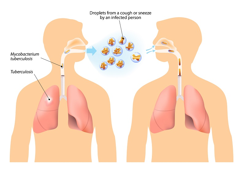 Tuberculosis infection
