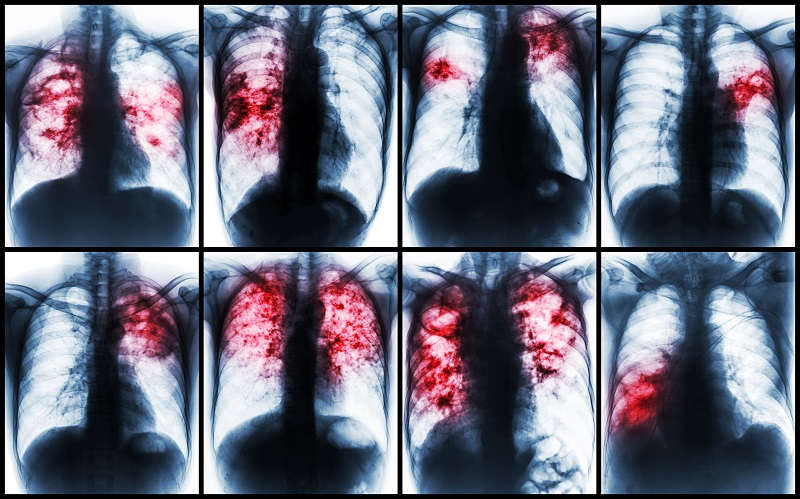 Chest X rays