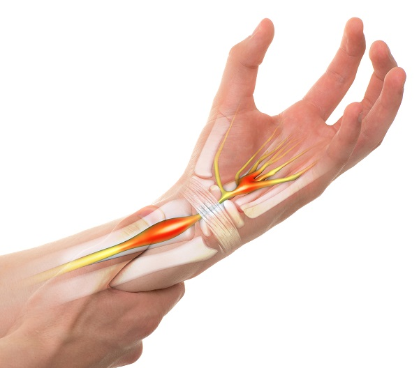 Carpal Tunnel Syndrome - Wrist Pain