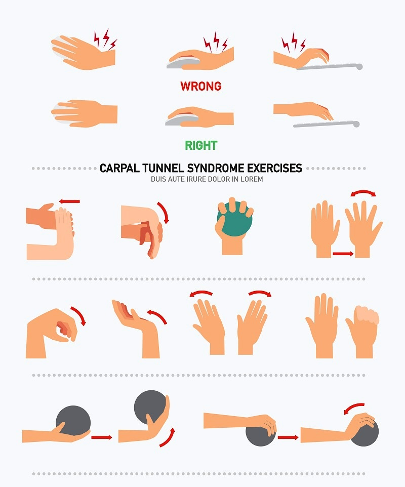 Carpal tunnel syndrome infographic