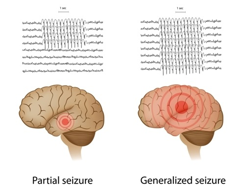 EEG for partial and generalized epilepsy