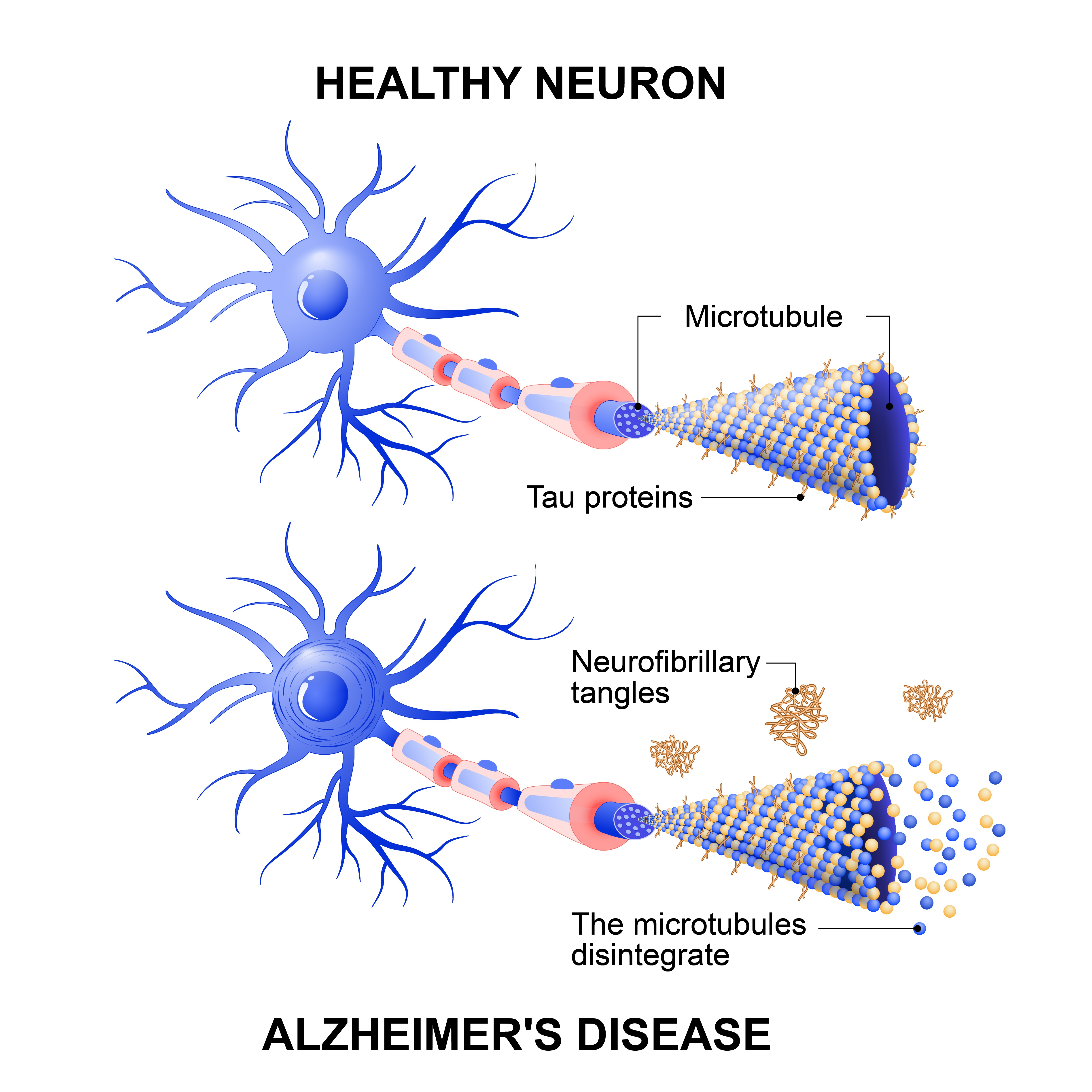 Healthy cell vs neuron with Alzheimer's