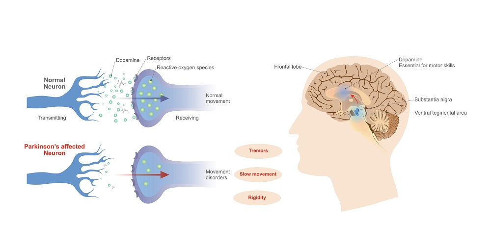 Dopamine levels and Parkinson's disease