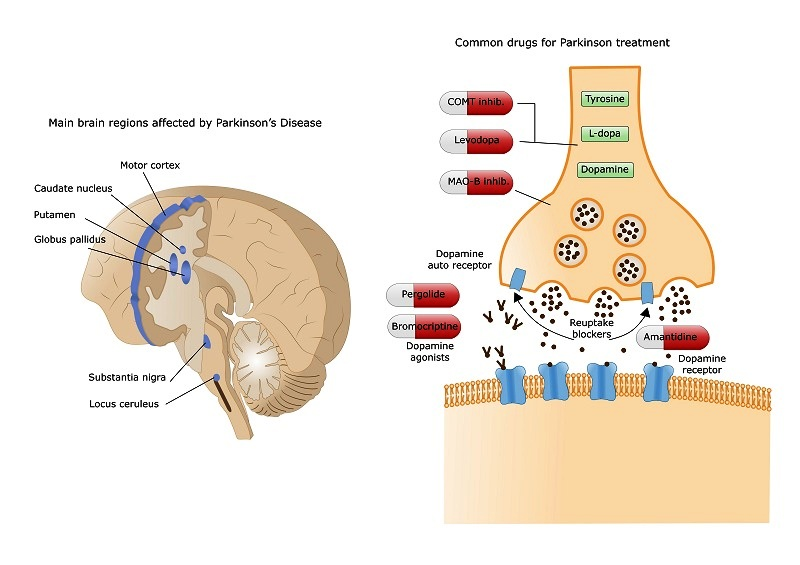 Parkinson's disease - Neurodegeneration and treatment