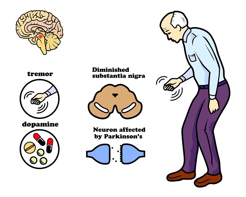 Basis of parkinson's disease
