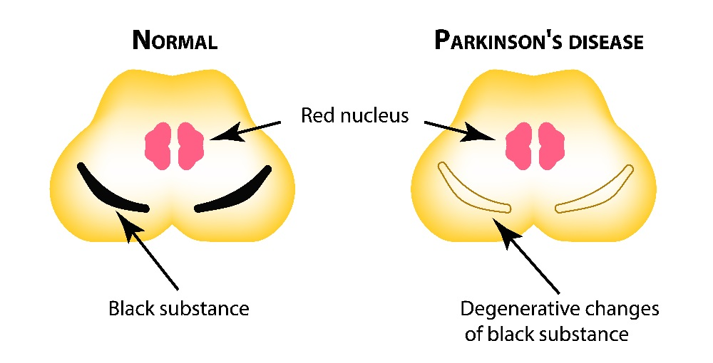 Normal vs a Parkinson's patient brain