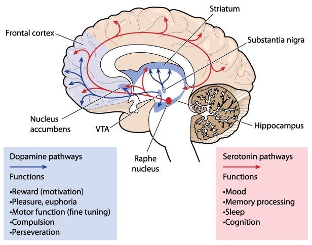 Parkinson's Disease - Effect on the brain