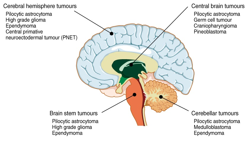 Different types of brain tumors